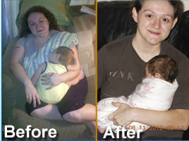 Gastric Sleeve Surgery Enables Second Pregnancy Texas Bariatric